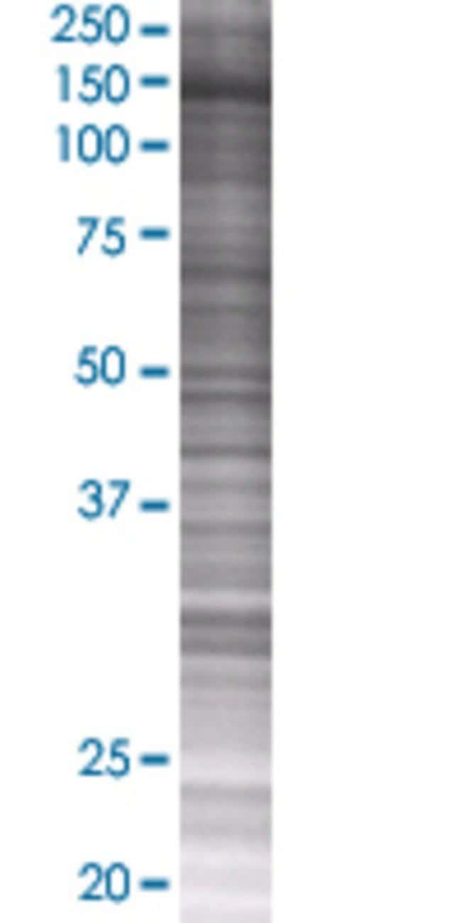 Abnova KIF4A 293T Cell Transient Overexpression Lysate (Denatured) 100µL:Life