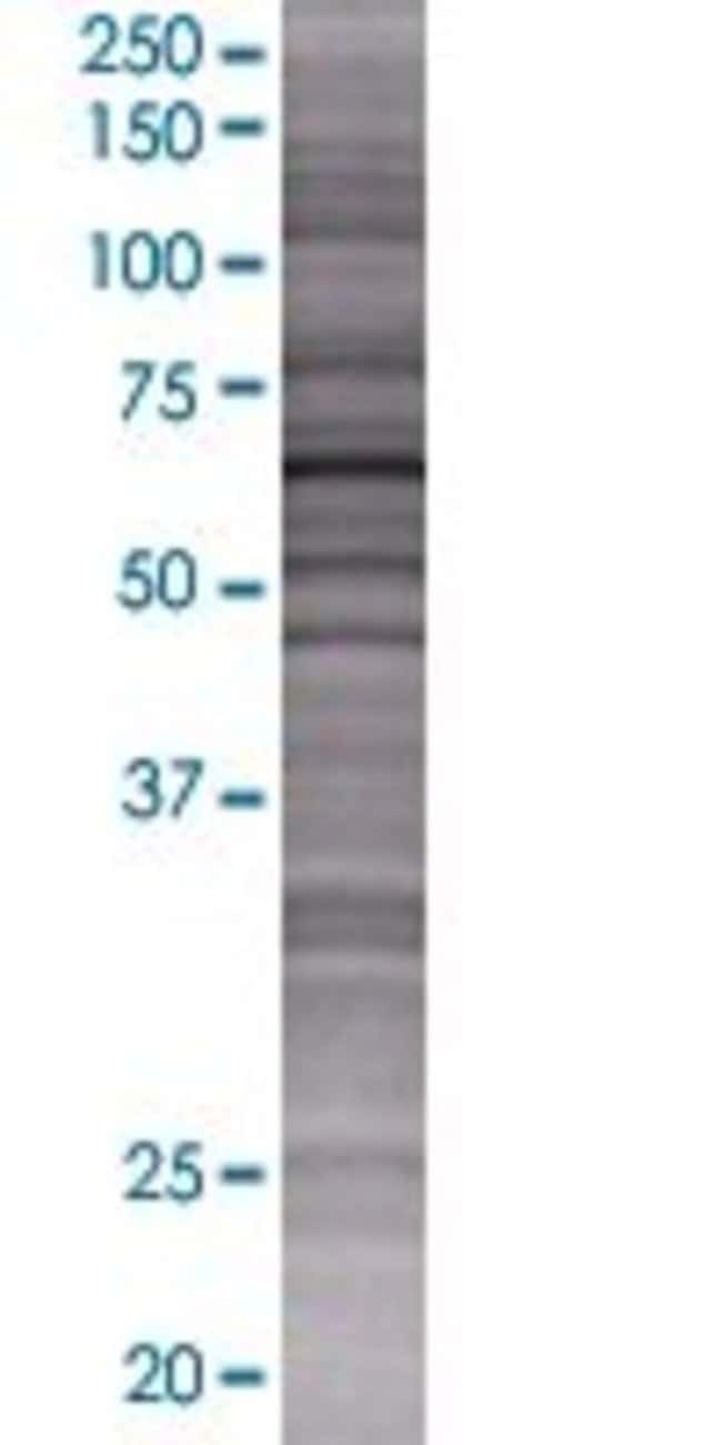Abnova IFIT5 293T Cell Transient Overexpression Lysate (Denatured) 100µL:Life