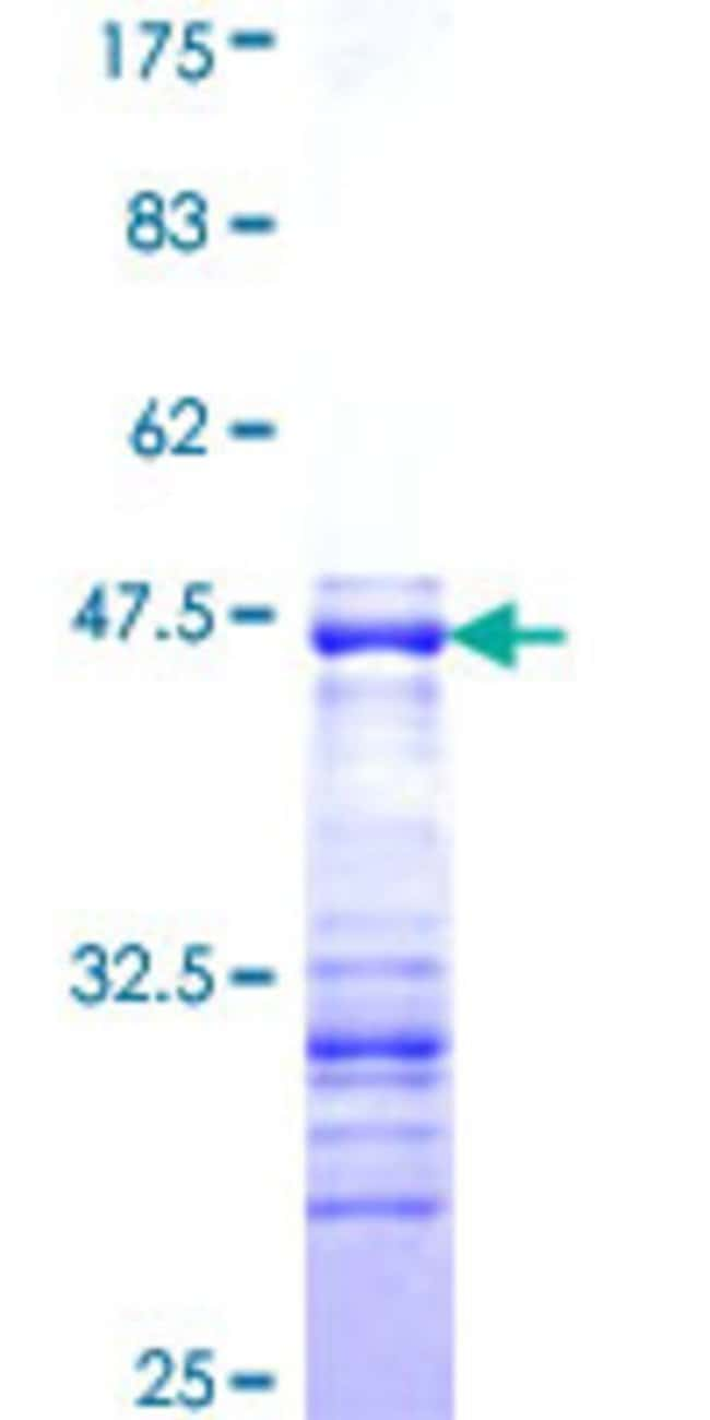 Abnova™Human SHC2 Partial ORF (XP_375550, 718 a.a. - 829 a.a.) Recombinant Protein with GST-tag at N-terminal 25μg Abnova™Human SHC2 Partial ORF (XP_375550, 718 a.a. - 829 a.a.) Recombinant Protein with GST-tag at N-terminal