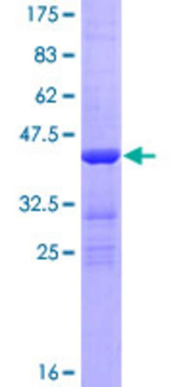 AbnovaHuman CBY1 Full-length ORF (NP_001002880.1, 1 a.a. - 126 a.a.) Recombinant