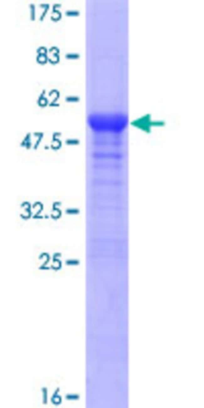 Abnova™Human RAD54B Full-length ORF (AAH33710.2, 1 a.a. - 158 a.a.) Recombinant Protein with GST-tag at N-terminal 10μg Abnova™Human RAD54B Full-length ORF (AAH33710.2, 1 a.a. - 158 a.a.) Recombinant Protein with GST-tag at N-terminal
