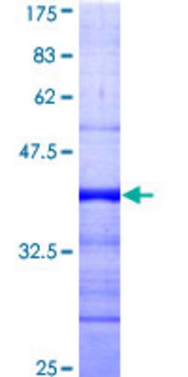 AbnovaHuman RAD54B Partial ORF (AAH01965, 801 a.a. - 910 a.a.) Recombinant