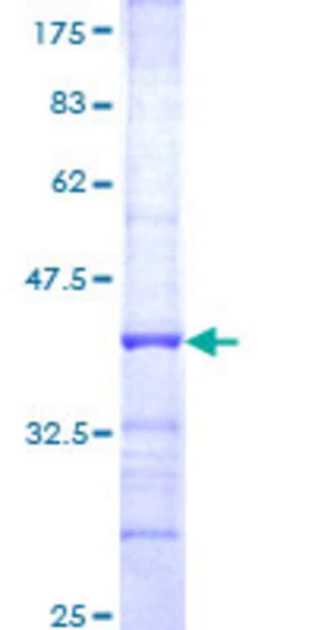 AbnovaHuman FBXO7 Partial ORF (NP_036311, 357 a.a. - 455 a.a.) Recombinant