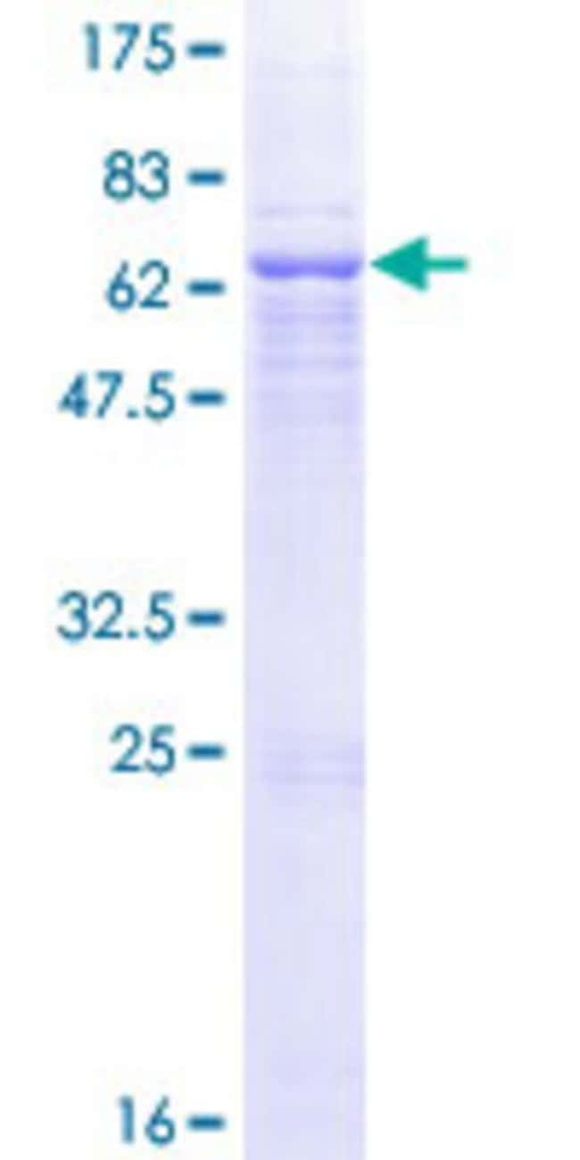 Abnova Human QPCT Full-length ORF (NP_036545.1, 1 a.a. - 361 a.a.) Recombinant