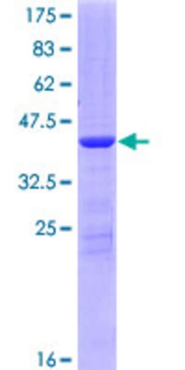 AbnovaHuman LSM4 Full-length ORF (NP_036453.1, 1 a.a. - 139 a.a.) Recombinant