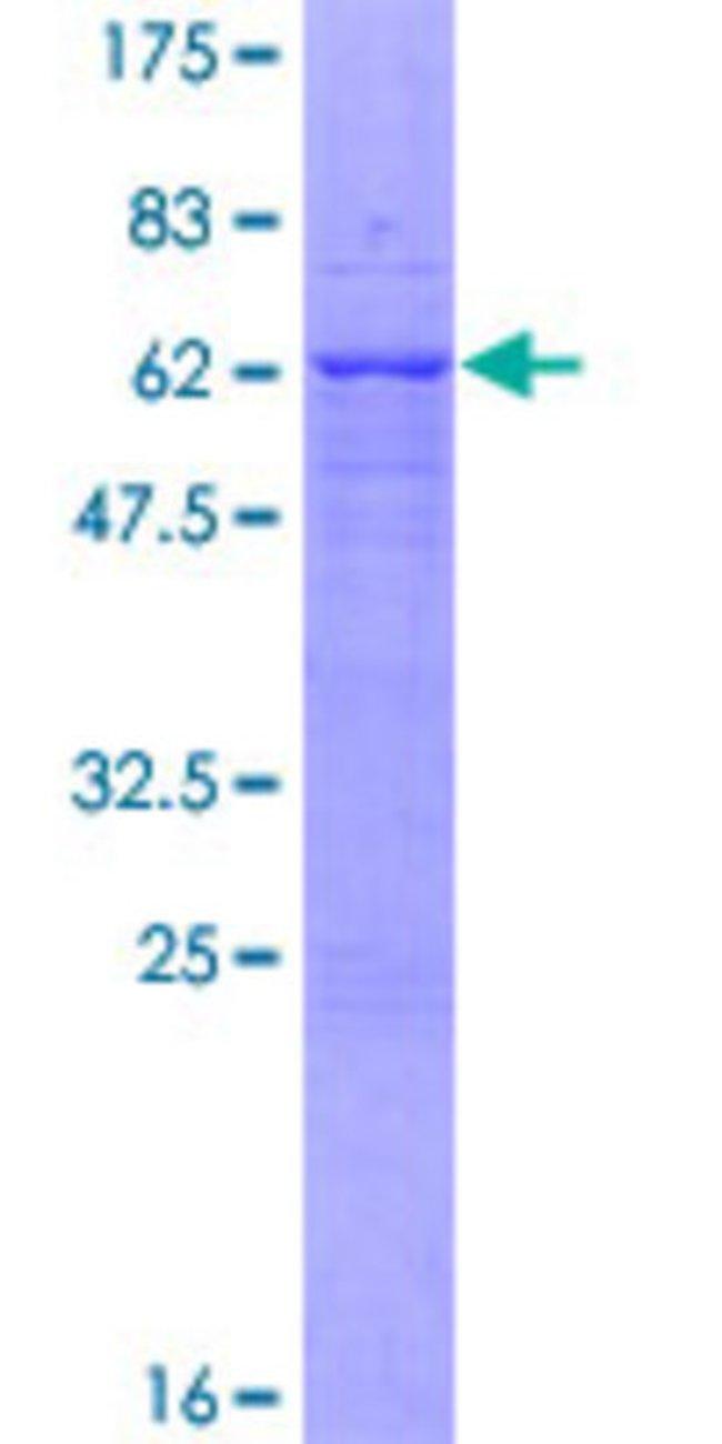 AbnovaHuman VAX2 Full-length ORF (NP_036608.1, 1 a.a. - 290 a.a.) Recombinant