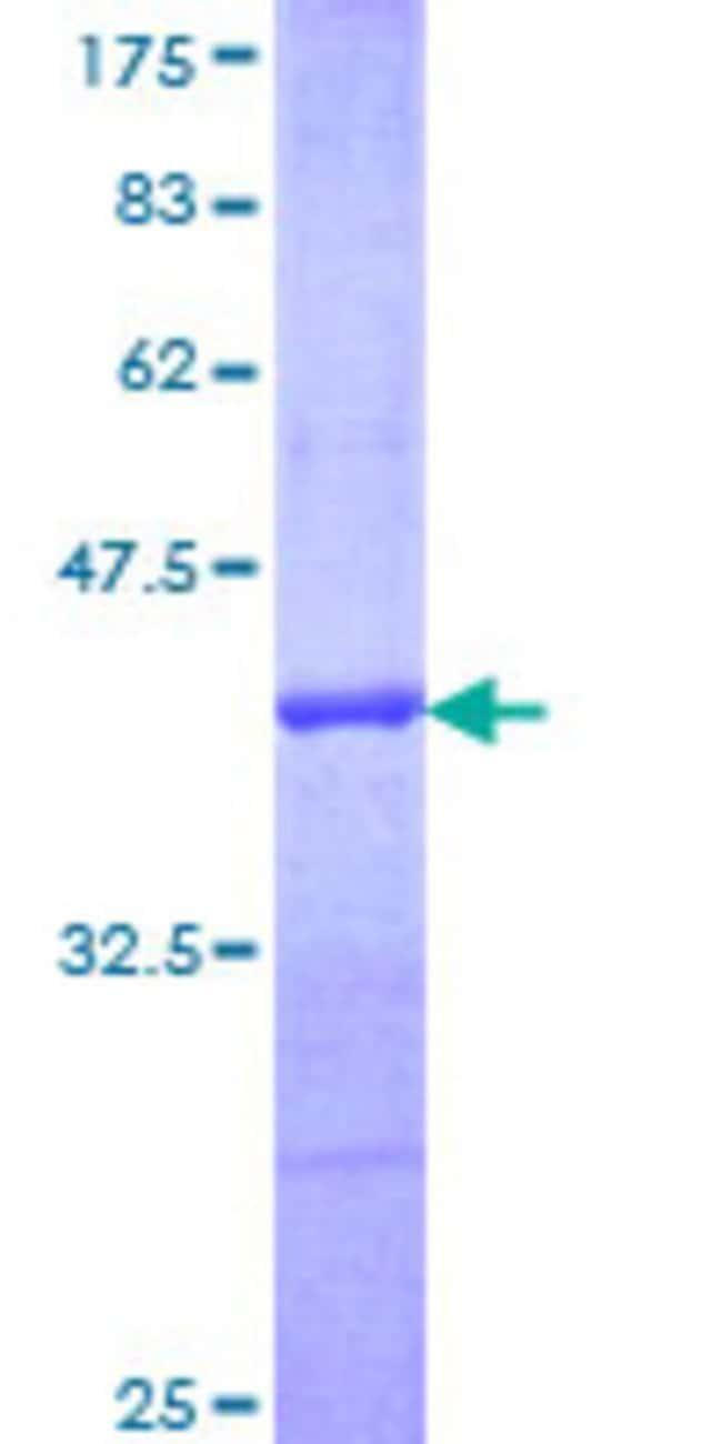 AbnovaHuman PRDX5 Partial ORF (NP_036226, 105 a.a. - 214 a.a.) Recombinant