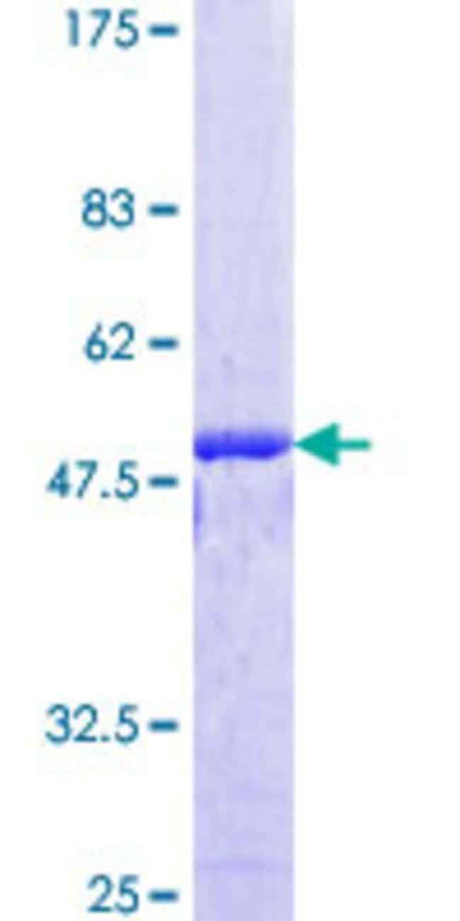AbnovaHuman NIPBL Full-length ORF (AAH33847.1, 1 a.a. - 175 a.a.) Recombinant