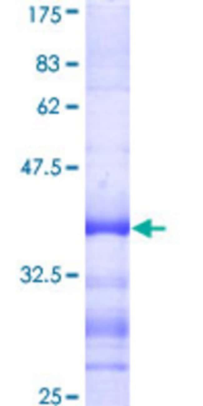 AbnovaHuman NIPBL Partial ORF (AAH33847, 66 a.a. - 175 a.a.) Recombinant