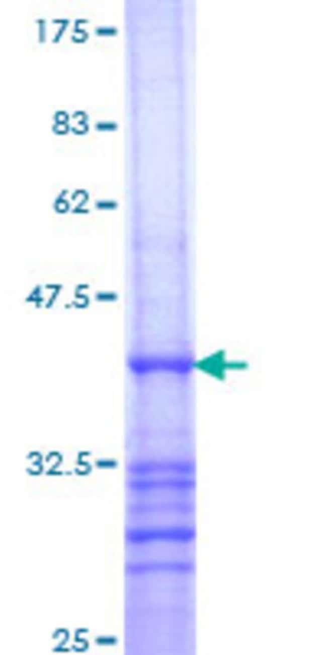 Abnova Human RAB26 Partial ORF (NP_055168, 157 a.a. - 254 a.a.) Recombinant