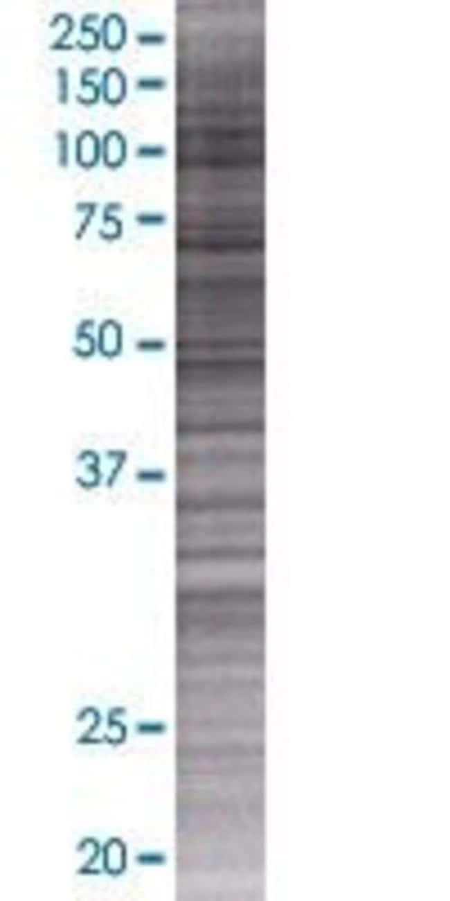 Abnova METTL7A 293T Cell Transient Overexpression Lysate (Denatured) 100µL:Life