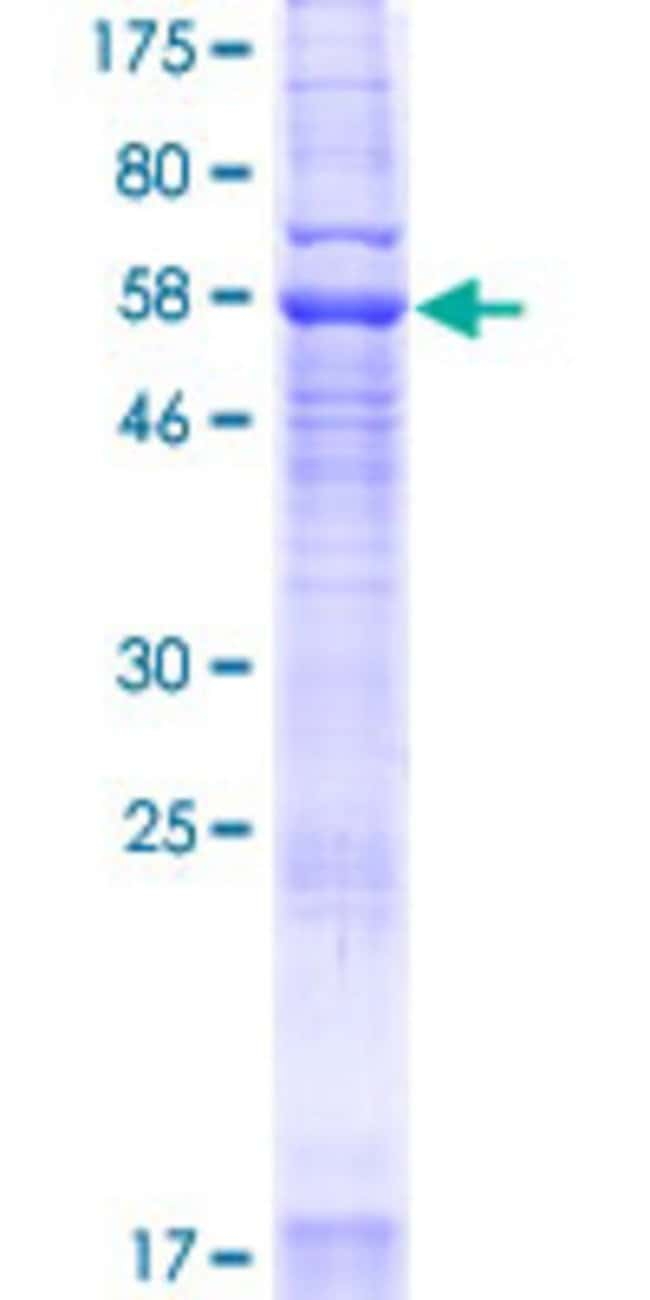 Abnova™Human YIPF3 Full-length ORF (NP_056203.2, 1 a.a. - 350 a.a.) Recombinant Protein with GST-tag at N-terminal 25μg Abnova™Human YIPF3 Full-length ORF (NP_056203.2, 1 a.a. - 350 a.a.) Recombinant Protein with GST-tag at N-terminal