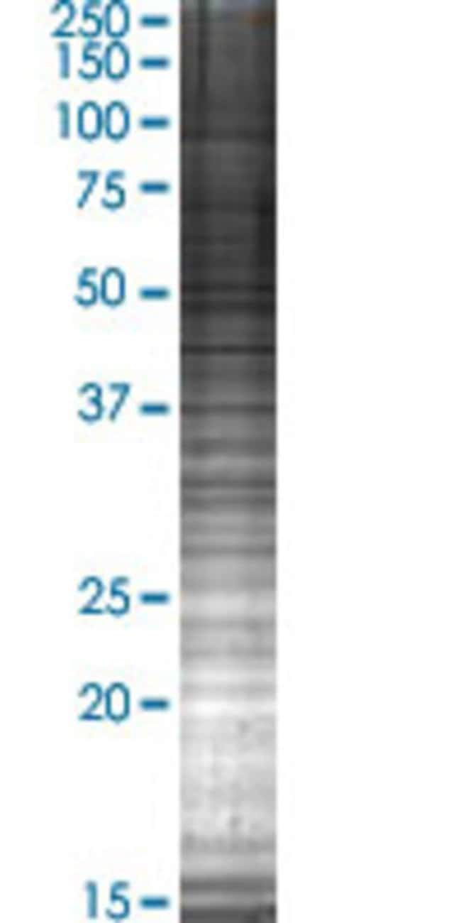AbnovaARMC8 293T Cell Transient Overexpression Lysate (Denatured) (T04)