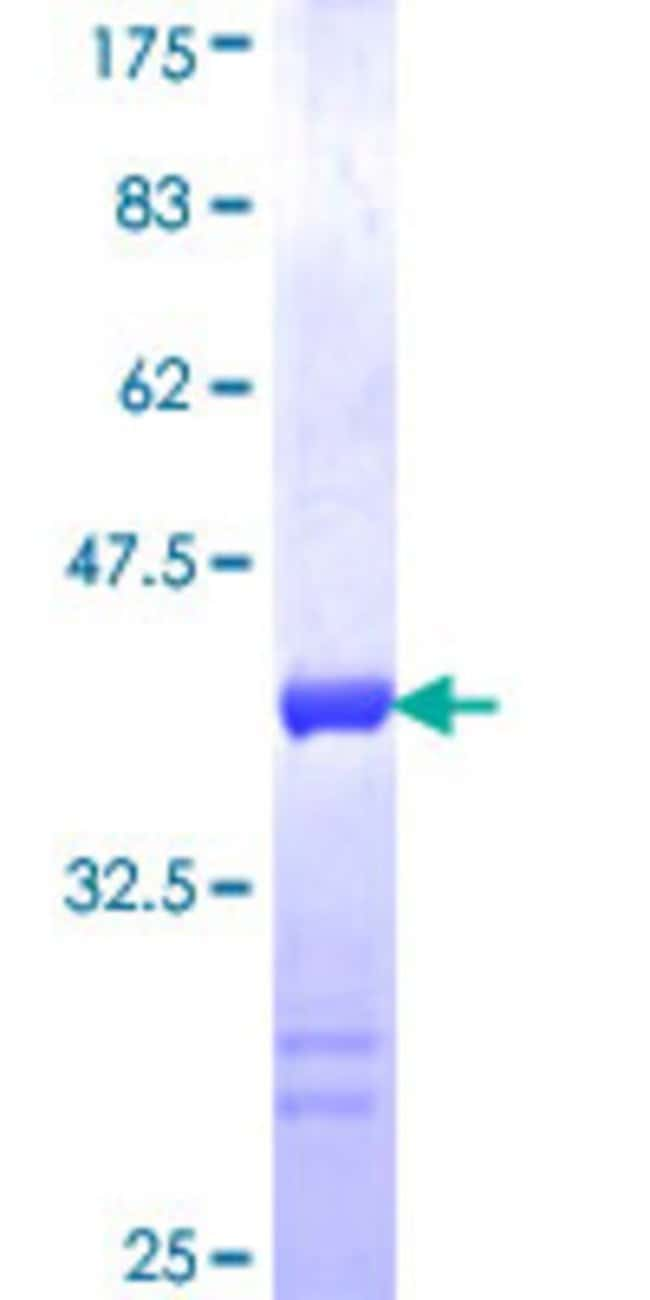 AbnovaHuman DFNB31 Partial ORF (NP_056219, 808 a.a. - 907 a.a.) Recombinant