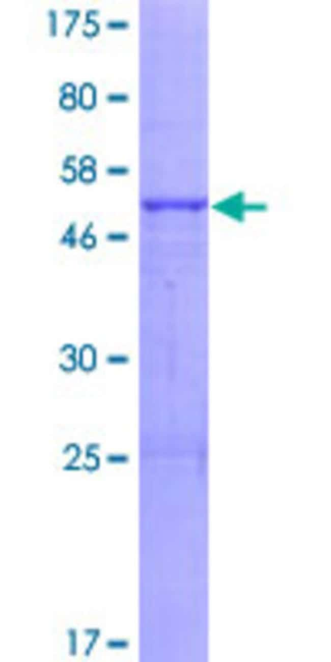 AbnovaHuman ABHD14A Full-length ORF (NP_056222.1, 1 a.a. - 271 a.a.) Recombinant