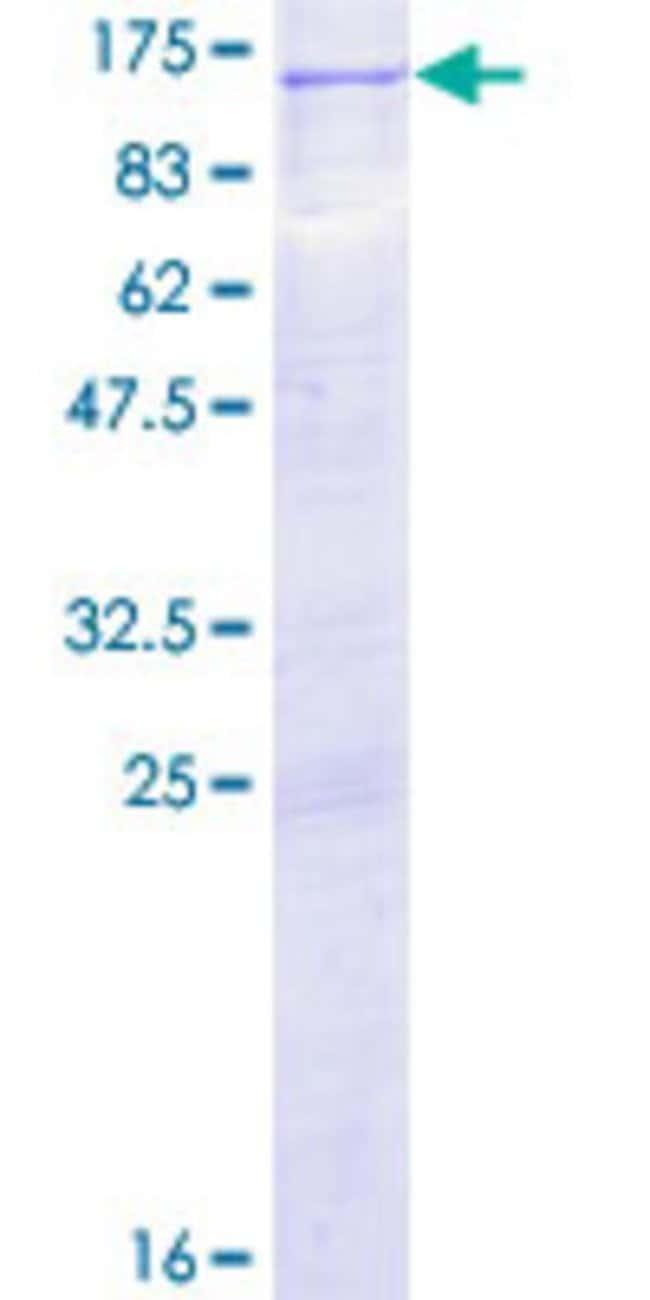 AbnovaHuman PRKD2 Full-length ORF (NP_057541.2, 1 a.a. - 878 a.a.) Recombinant
