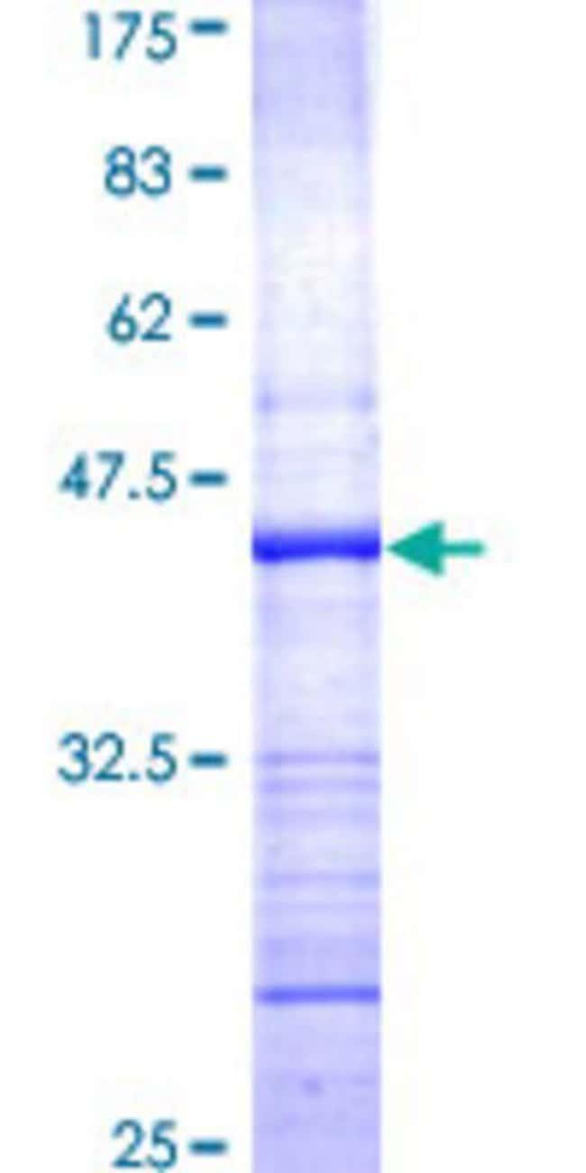 AbnovaHuman PRKD2 Partial ORF (AAH25307, 1 a.a. - 110 a.a.) Recombinant