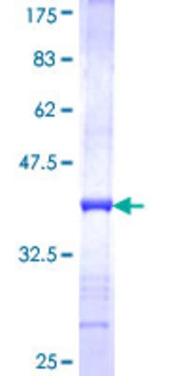 AbnovaHuman SUMF2 Partial ORF (NP_056226, 26 a.a. - 125 a.a.) Recombinant