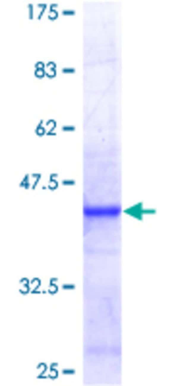 AbnovaHuman BRP44 Full-length ORF (NP_056230.1, 1 a.a. - 127 a.a.) Recombinant