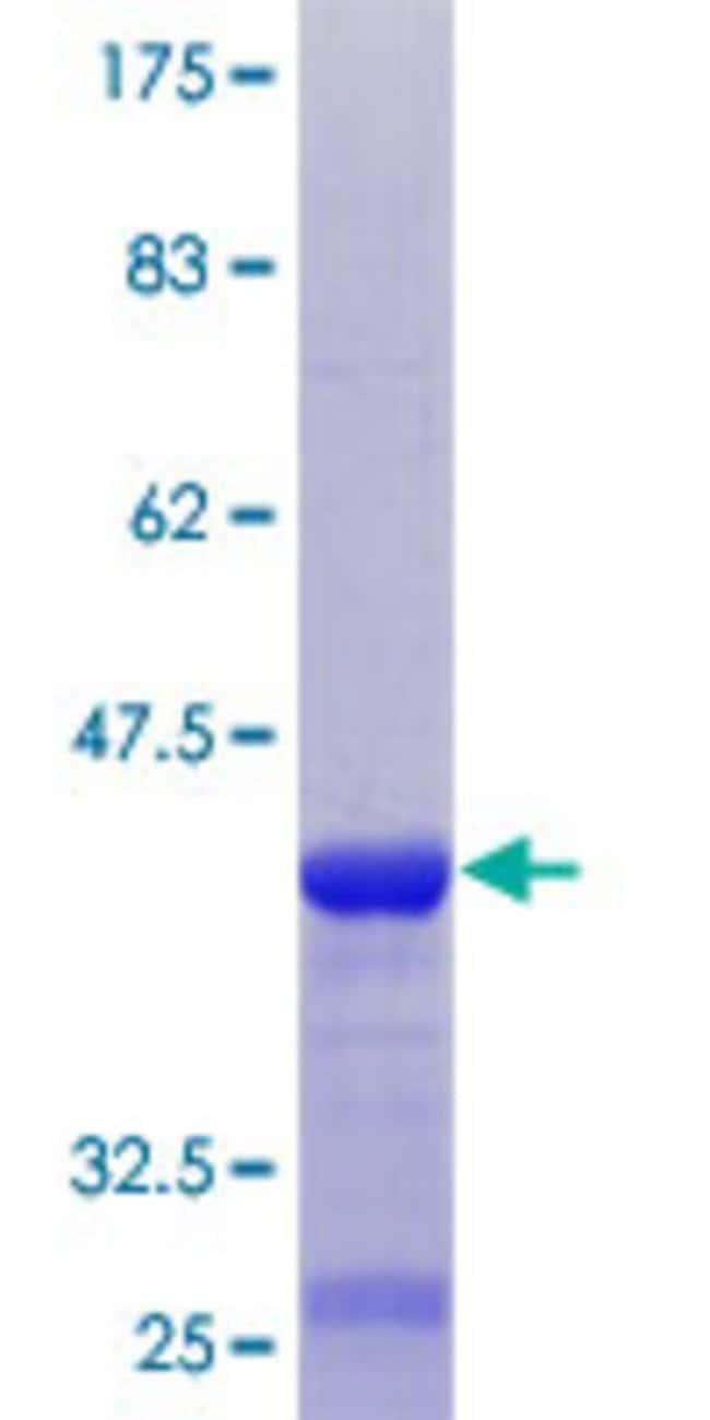 Abnova™Human ABI3BP Partial ORF (NP_056244.2, 511 a.a. - 609 a.a.) Recombinant Protein with GST-tag at N-terminal 10μg Abnova™Human ABI3BP Partial ORF (NP_056244.2, 511 a.a. - 609 a.a.) Recombinant Protein with GST-tag at N-terminal