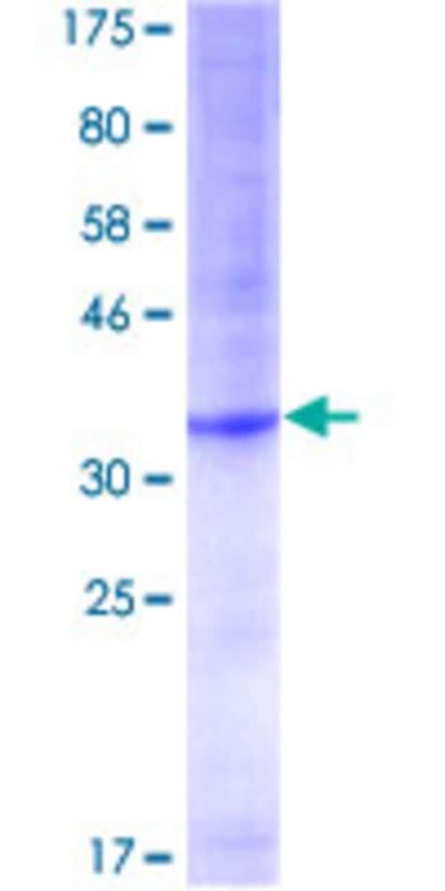 AbnovaHuman POT1 Partial ORF (NP_056265, 1 a.a. - 95 a.a.) Recombinant