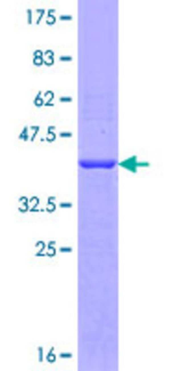 AbnovaHuman GEMIN5 Partial ORF (NP_056280.1, 401 a.a. - 510 a.a.) Recombinant