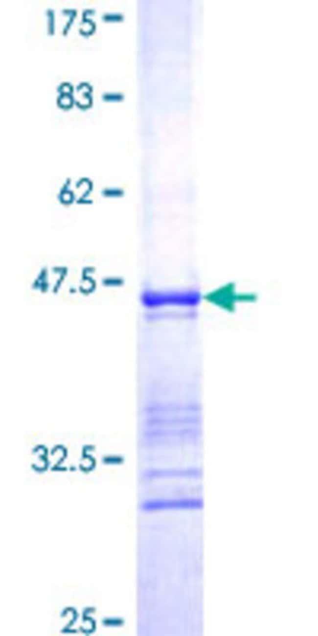 AbnovaHuman CLIC4 Partial ORF (NP_039234, 91 a.a. - 190 a.a.) Recombinant