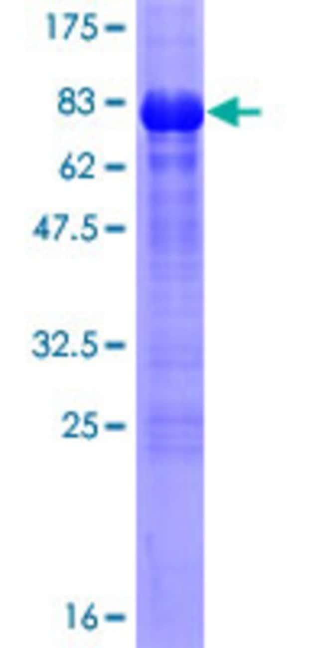 AbnovaHuman WWTR1 Full-length ORF (NP_056287.1, 1 a.a. - 400 a.a.) Recombinant