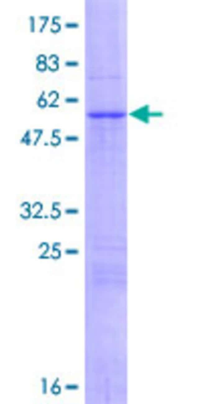 Abnova™Human NUDT13 Full-length ORF (AAH46173.2, 1 a.a. - 263 a.a.) Recombinant Protein with GST-tag at N-terminal 25μg Abnova™Human NUDT13 Full-length ORF (AAH46173.2, 1 a.a. - 263 a.a.) Recombinant Protein with GST-tag at N-terminal