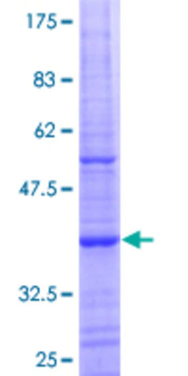AbnovaHuman NUDT13 Partial ORF (NP_056985.3, 2 a.a. - 110 a.a.) Recombinant