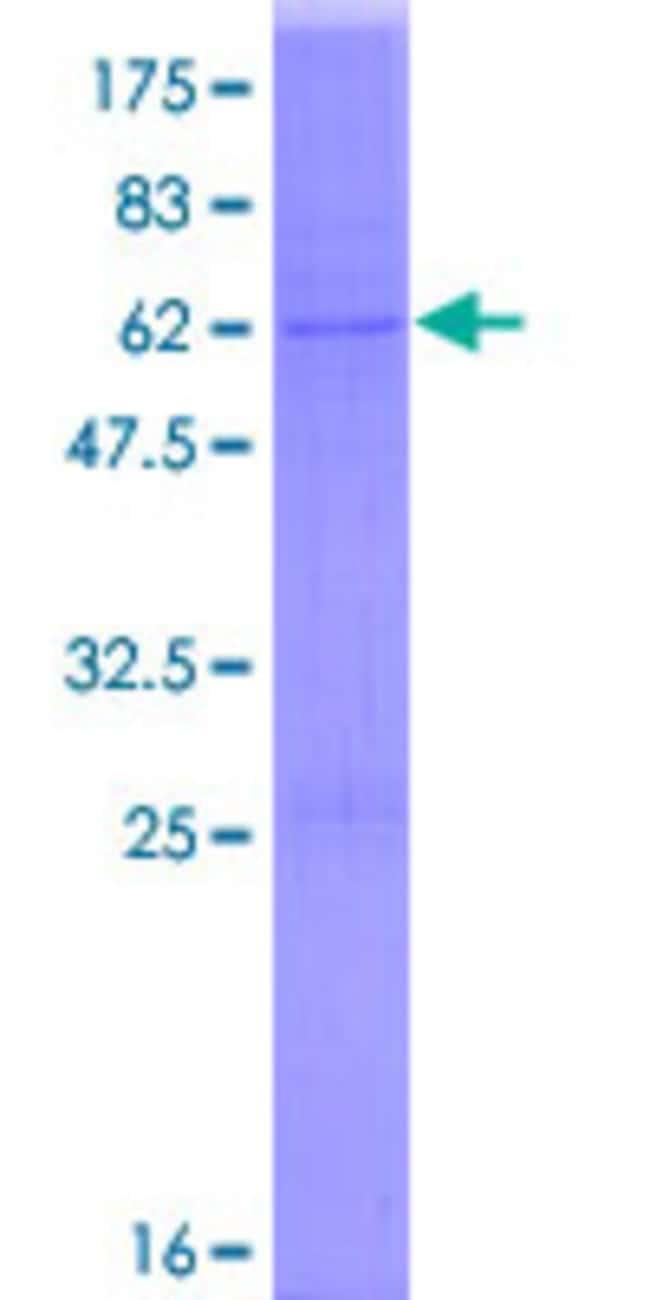 AbnovaHuman DHRS7B Full-length ORF (NP_056325.2, 1 a.a. - 325 a.a.) Recombinant