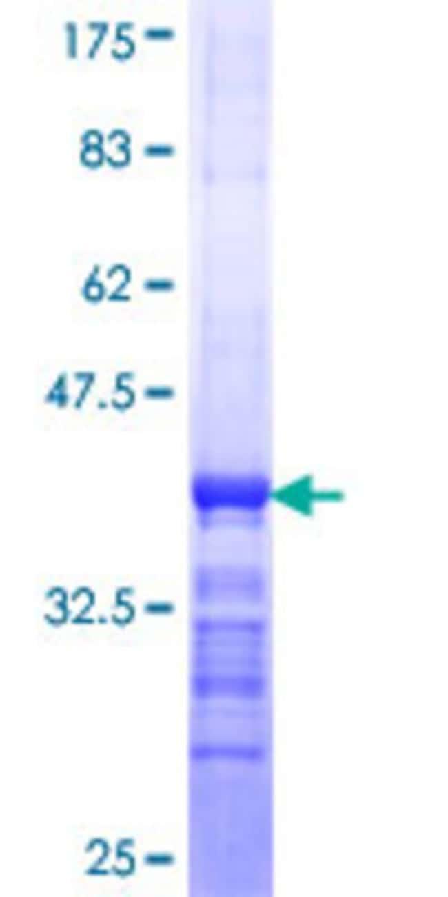 AbnovaHuman TSK Partial ORF (NP_056331, 254 a.a. - 353 a.a.) Recombinant