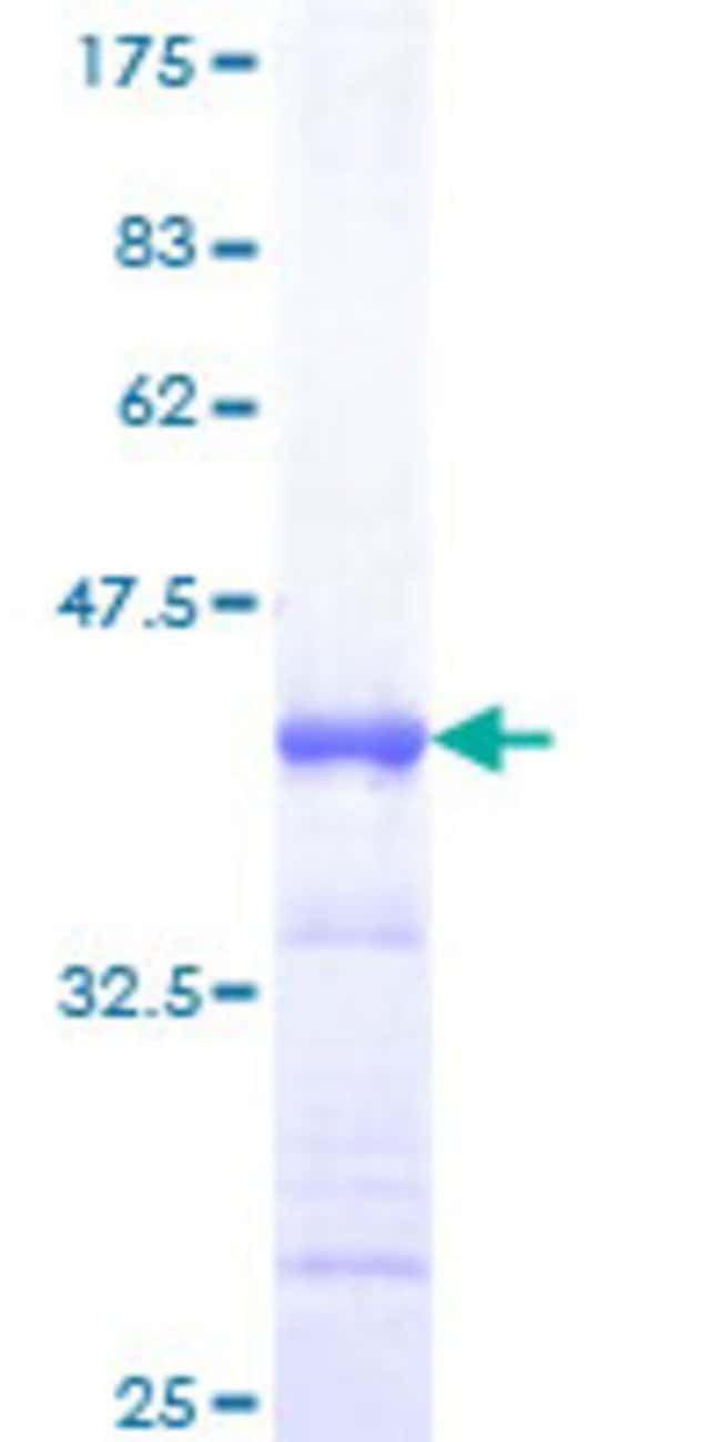 Abnova™Human MIZF Partial ORF (NP_056332, 1 a.a. - 110 a.a.) Recombinant Protein with GST-tag at N-terminal 10μg Abnova™Human MIZF Partial ORF (NP_056332, 1 a.a. - 110 a.a.) Recombinant Protein with GST-tag at N-terminal