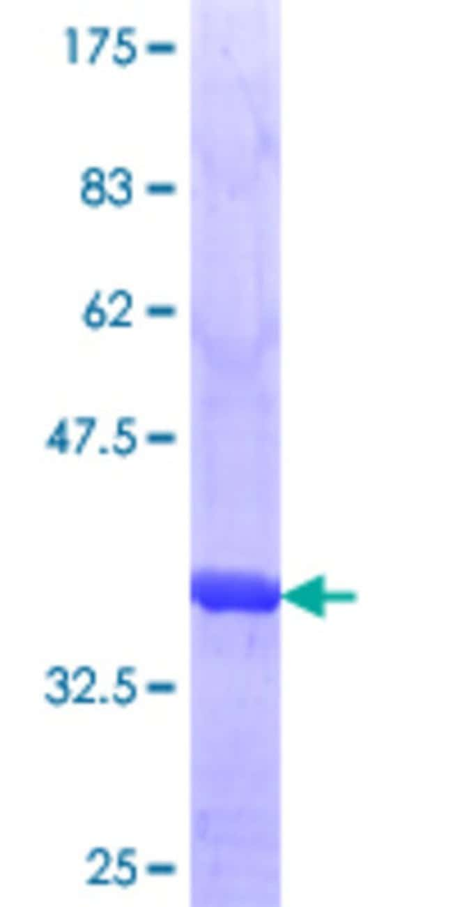AbnovaHuman ULK3 Partial ORF (AAH56423.1, 1 a.a. - 98 a.a.) Recombinant