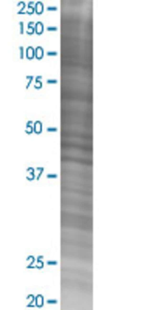 Abnova IBTK 293T Cell Transient Overexpression Lysate (Denatured) (T02)