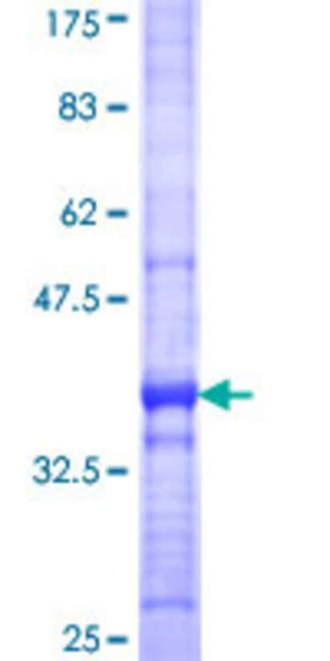 Abnova™Human MOXD1 Partial ORF (NP_056344, 21 a.a. - 120 a.a.) Recombinant Protein with GST-tag at N-terminal 10μg Abnova™Human MOXD1 Partial ORF (NP_056344, 21 a.a. - 120 a.a.) Recombinant Protein with GST-tag at N-terminal