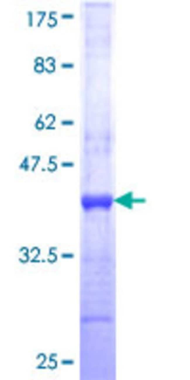 Abnova™Human GORASP2 Partial ORF (NP_056345, 1 a.a. - 100 a.a.) Recombinant Protein with GST-tag at N-terminal 25μg Abnova™Human GORASP2 Partial ORF (NP_056345, 1 a.a. - 100 a.a.) Recombinant Protein with GST-tag at N-terminal