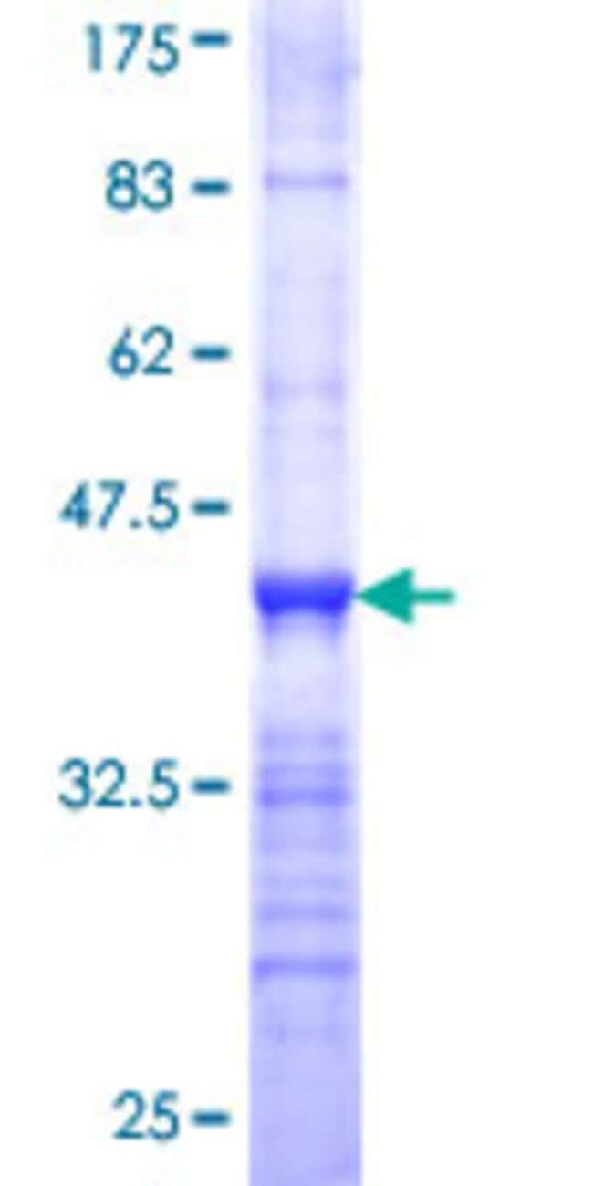 AbnovaHuman DKFZP586B1621 Partial ORF (NP_056348, 319 a.a. - 420 a.a.)