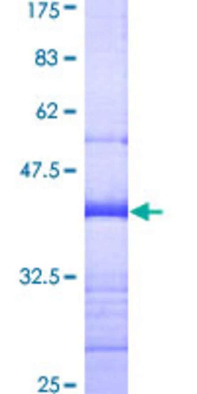 AbnovaHuman THEA Partial ORF (AAH01517, 1 a.a. - 110 a.a.) Recombinant