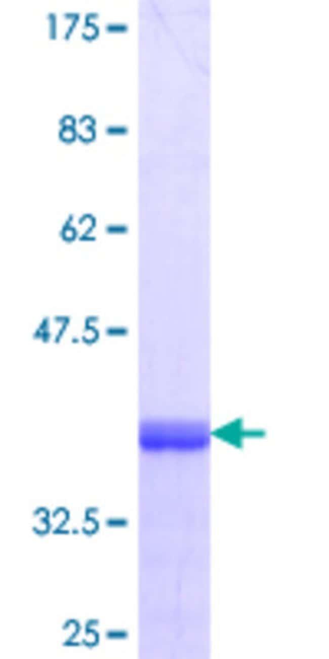AbnovaHuman OSBPL3 Partial ORF (NP_056365.1, 788 a.a. - 887 a.a.) Recombinant