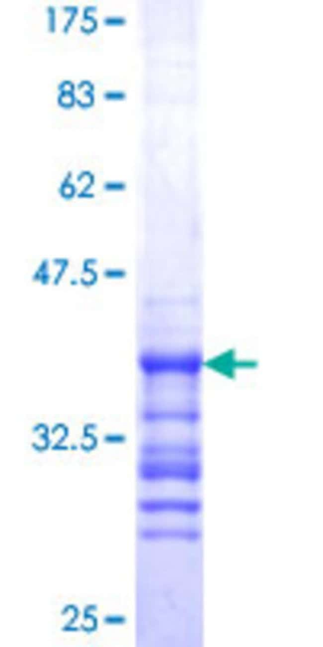 AbnovaHuman SS18L1 Partial ORF (NP_056373, 112 a.a. - 200 a.a.) Recombinant