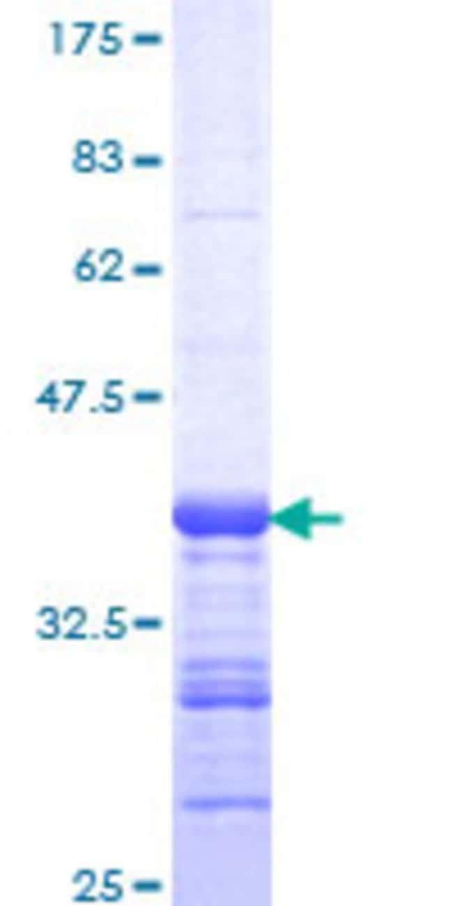 AbnovaHuman ANKRD17 Partial ORF (NP_115593, 2501 a.a. - 2603 a.a.) Recombinant