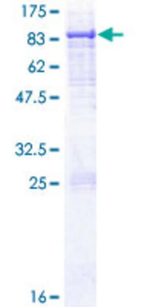 Abnova Human HACL1 Full-length ORF (NP_036392.2, 1 a.a. - 578 a.a.) Recombinant