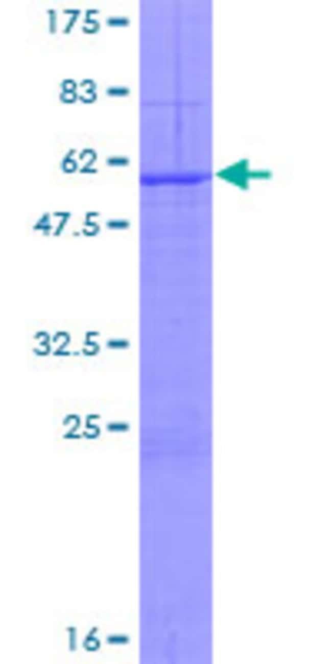 Abnova Human KLK13 Full-length ORF (NP_056411.1, 1 a.a. - 277 a.a.) Recombinant
