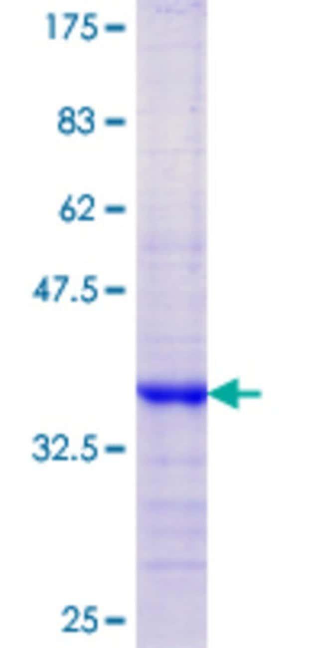AbnovaHuman KLK13 Partial ORF (NP_056411.1, 179 a.a. - 277 a.a.) Recombinant