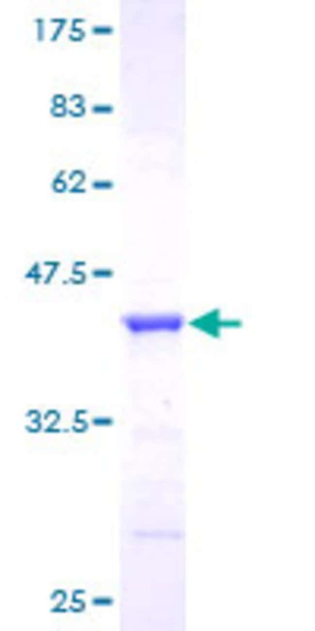 Abnova™ Human GGA1 Full-length ORF (AAH29388, 1 a.a. - 89 a.a.) Recombinant Protein with GST-tag at N-terminal 25μg Abnova™ Human GGA1 Full-length ORF (AAH29388, 1 a.a. - 89 a.a.) Recombinant Protein with GST-tag at N-terminal