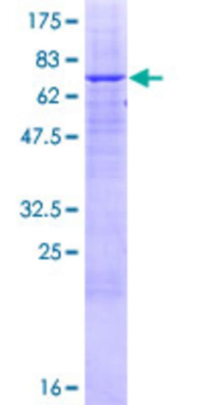 AbnovaHuman ABHD12 Full-length ORF (NP_056415.1, 1 a.a. - 404 a.a.) Recombinant