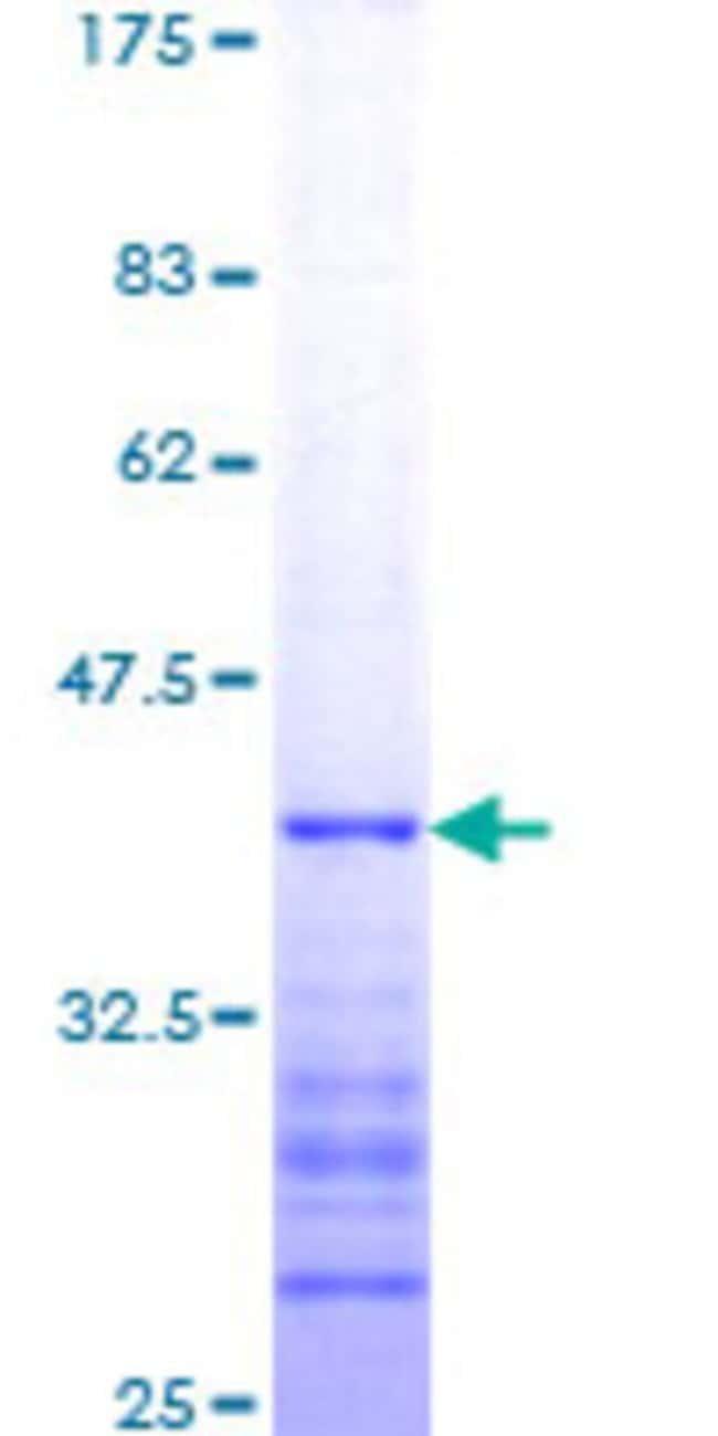 AbnovaHuman PYGO1 Partial ORF (NP_056432, 101 a.a. - 200 a.a.) Recombinant