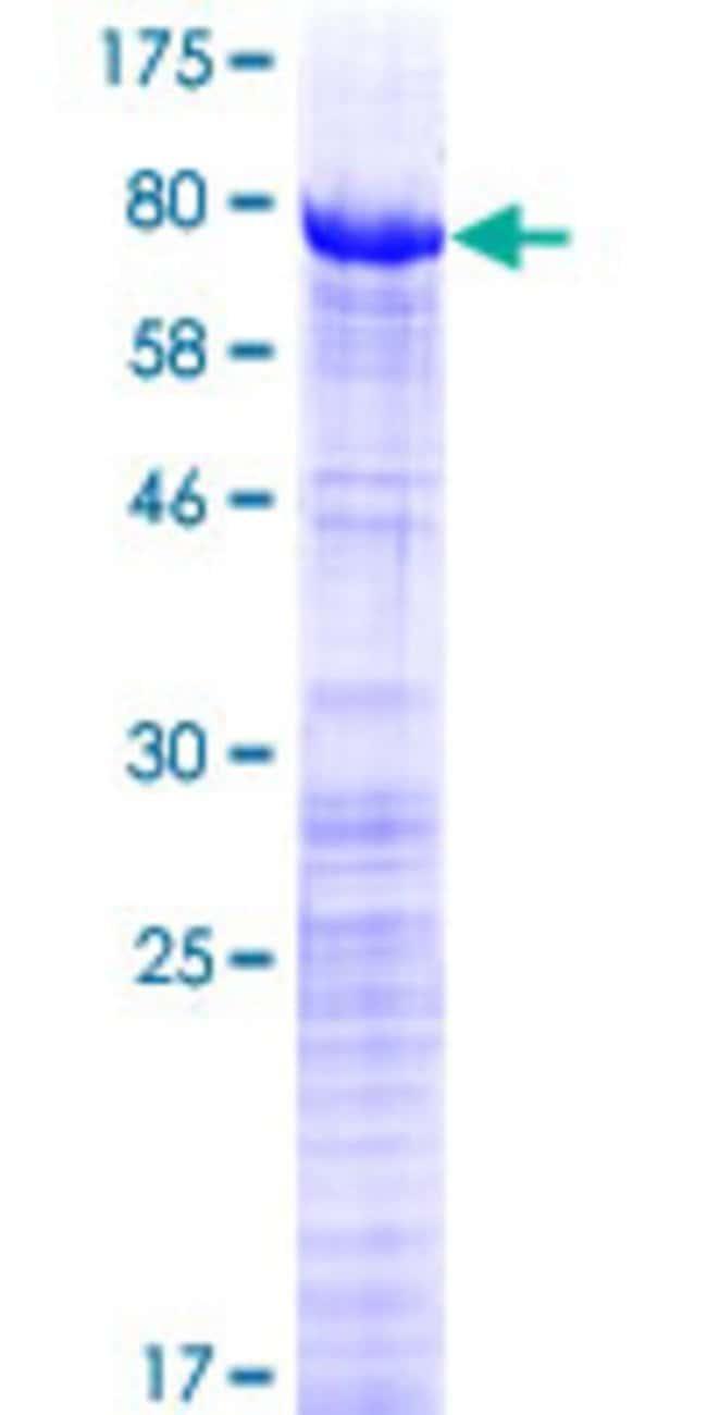 AbnovaHuman PRPF31 Full-length ORF (NP_056444.2, 1 a.a. - 499 a.a.) Recombinant