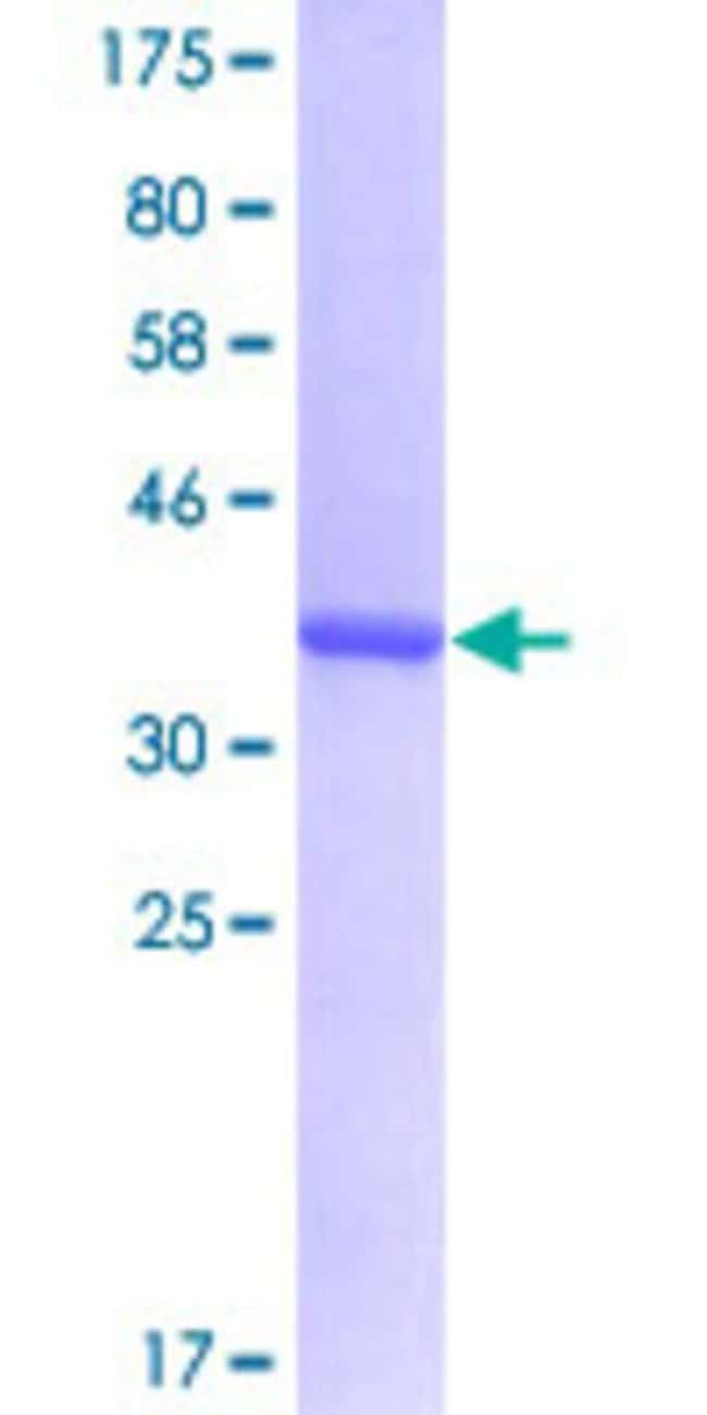 AbnovaHuman PRPF31 Partial ORF (NP_056444, 400 a.a. - 499 a.a.) Recombinant